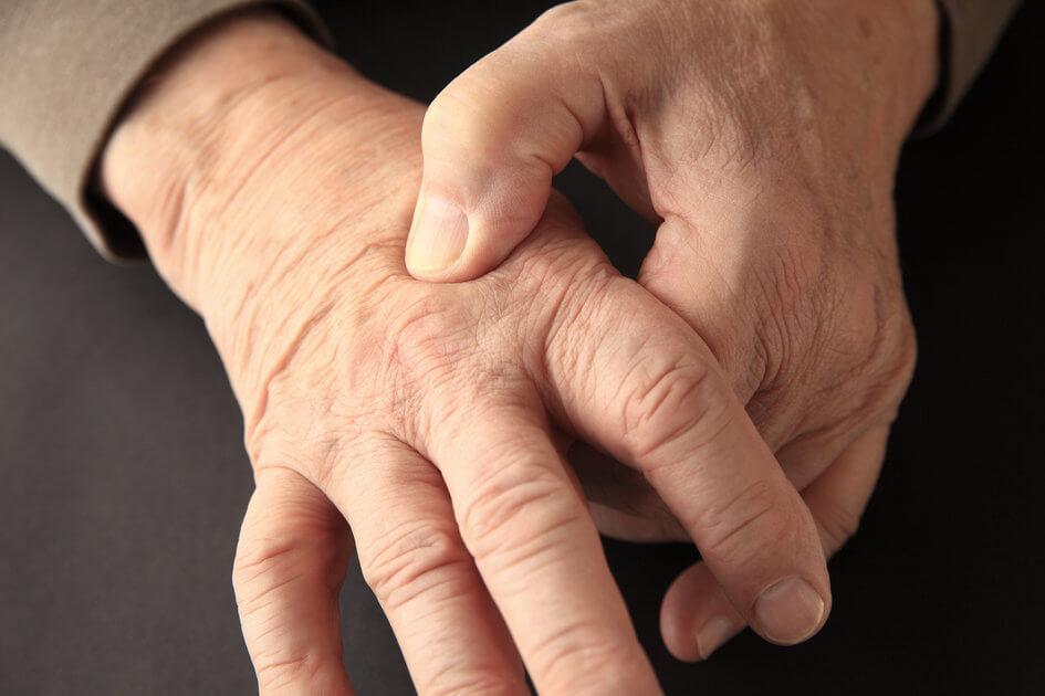 Arthritis - Chiropractor Boca Raton FL