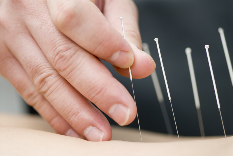 Functional Dry Needling - Acupuncture - Grove Chiropractic